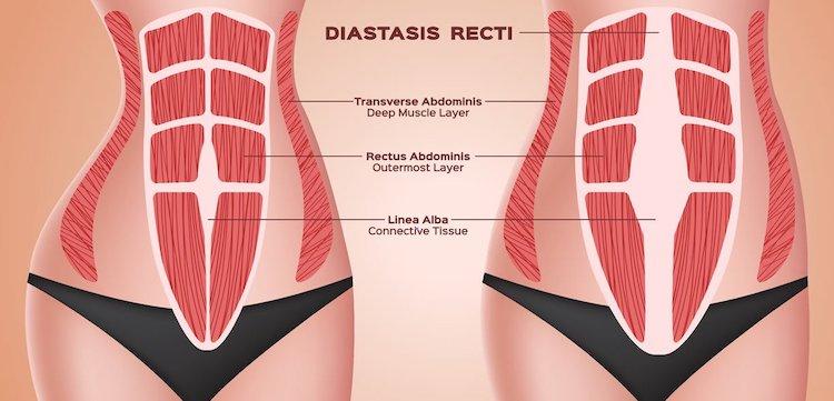 allenamento diastasi